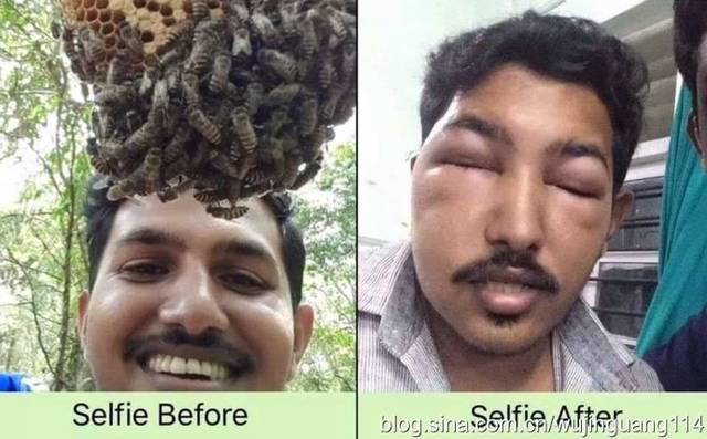 印度蜜蜂叮自拍者.jpg